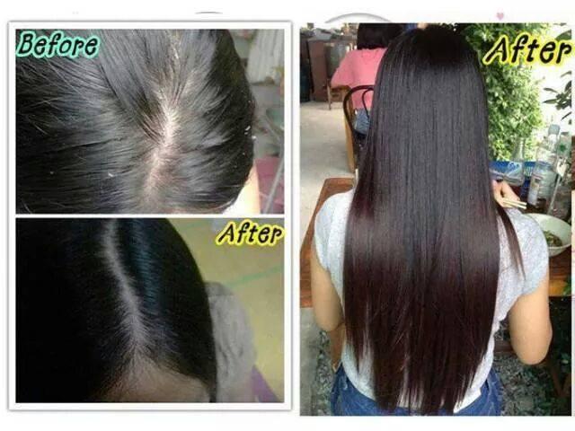 Chống rụng tóc và kích thích mọc tóc