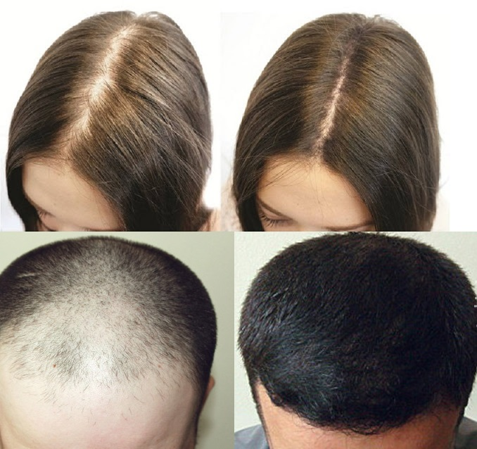 Dầu gội kích thích mọc tóc tốt nhất
